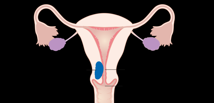 endometrialcancer