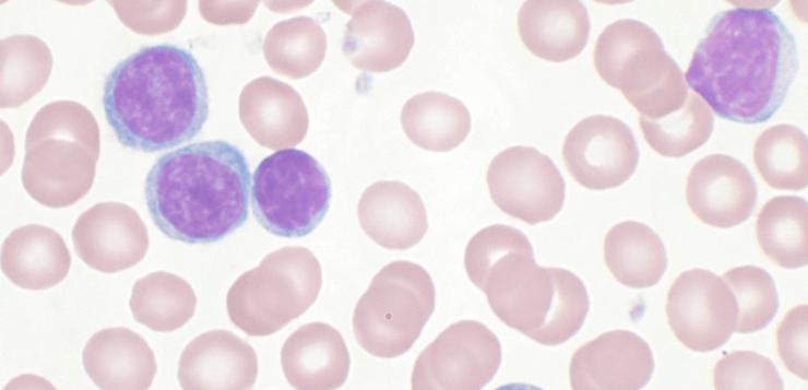 chronic_lymphocytic_leukemia