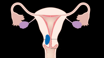 endometrialcancer