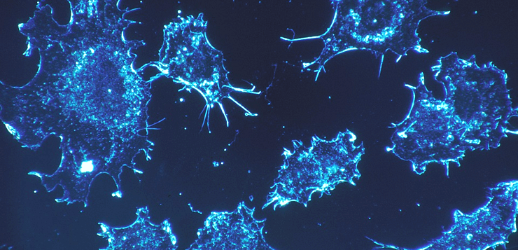 cancer-cells-541954_960_720